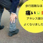 歩くたびに痛かったアキレス腱の痛みが消えました! 58歳男性 T.H様